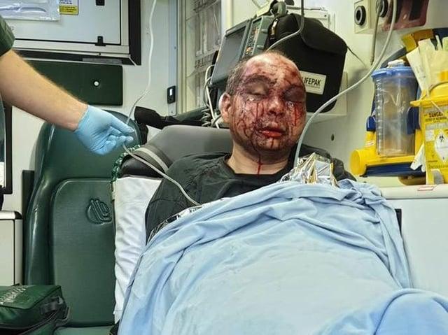 The assault victim