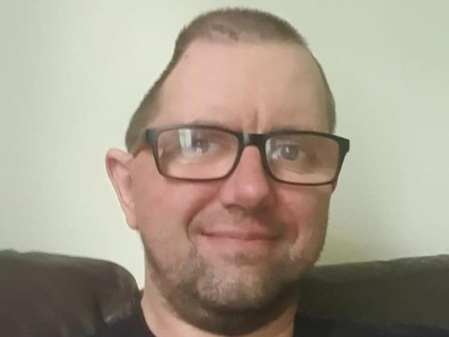 Karl Hawkins had part of his skull removed due to the brain haemorrhage